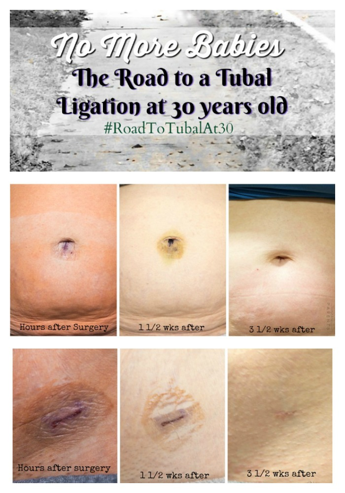 roadtotubalat30-tubal-ligation