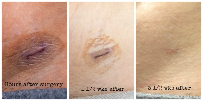 tubal-ligation-scar-recovery-photos
